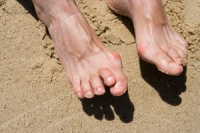 Is Surgery an Option to Cure Hammertoe?