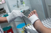 Foot Ulcers and Diabetes