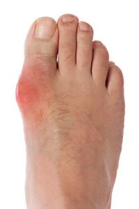Intense Pain May Be Associated with Gout